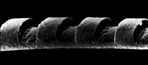docteur-caubet-laser-excimer-vue-au-microscope-d-un-cheveu